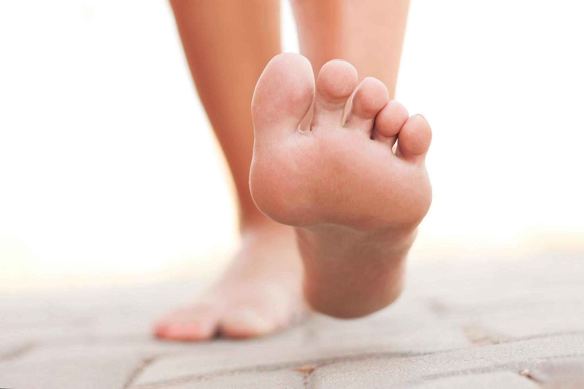 Veja o que fazer para amenizar a hiperhidrose plantar ou suor no pé