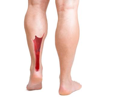 Fortaleça suas pernas e previna-se da tendinite no calcâneo