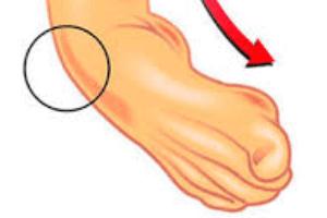 Principais lesões esportivas: entorse do tornozelo - Foto: Reprodução