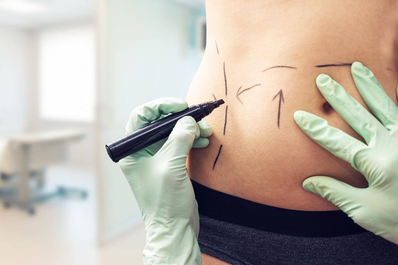 Conheça os cuidados para voltar aos treinos após uma cirurgia plástica
