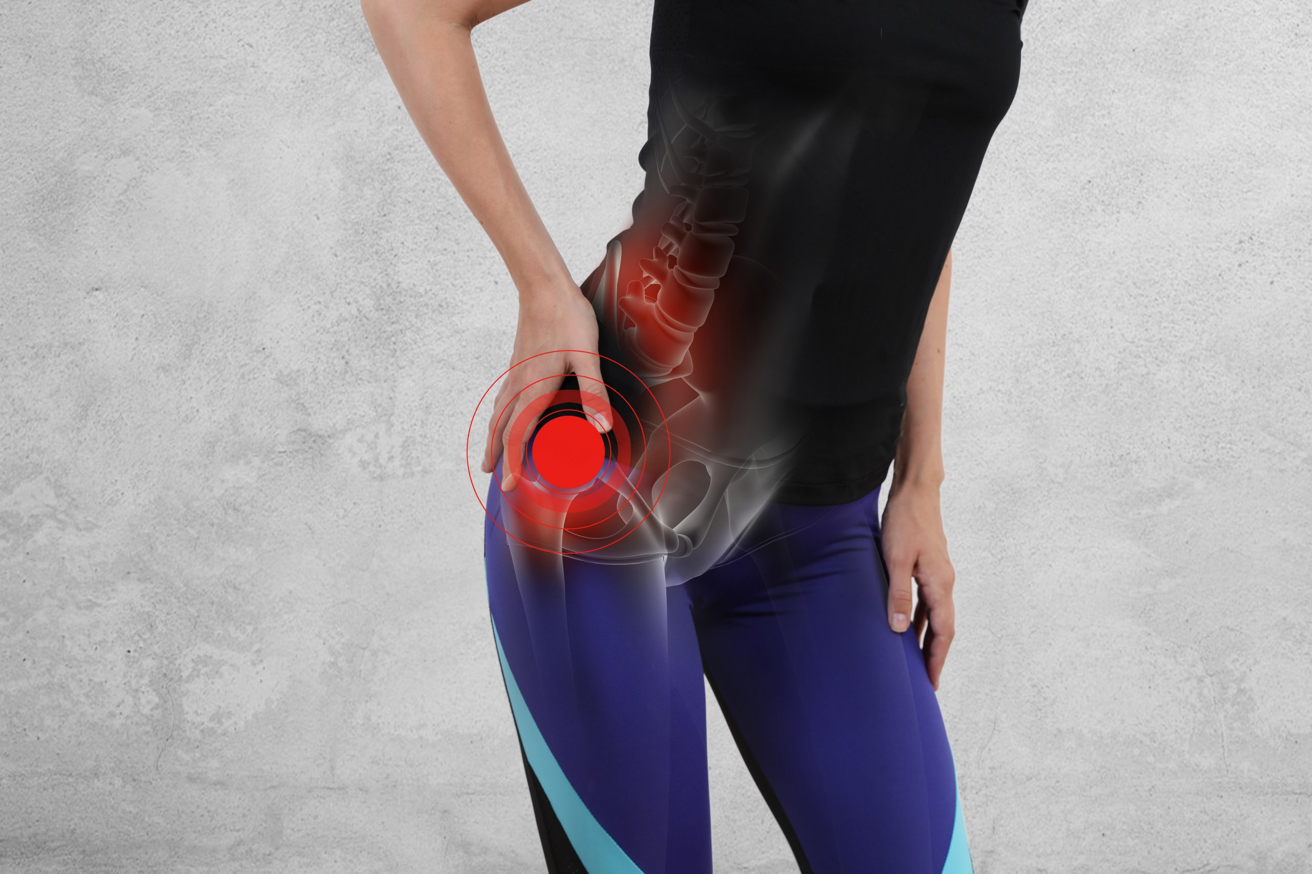 Lesão pélvica na corrida: veja como identificar e tratar - Foto: Adobe Stock
