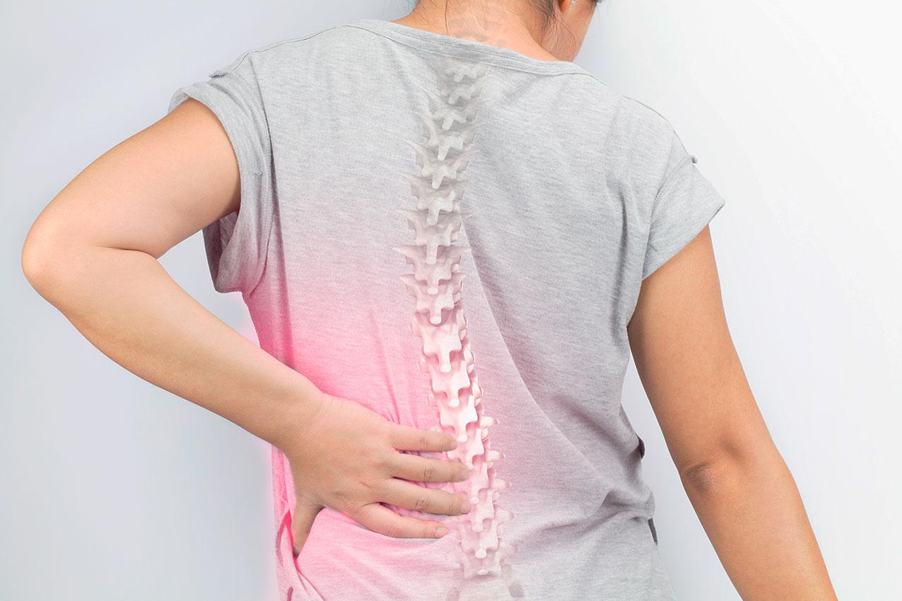 Osteoporose: tire suas dúvidas sobre a doença silenciosa