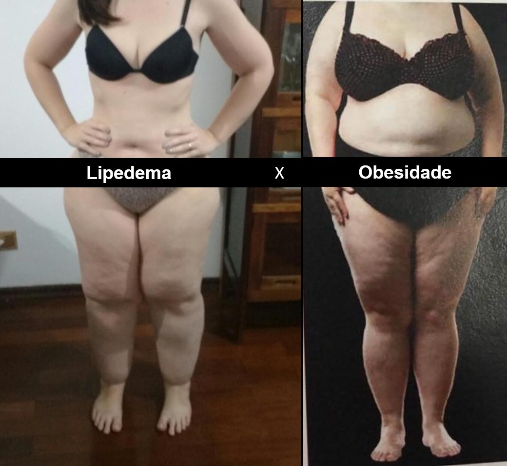 Gordura nas pernas? Médico explica o que é Lipedema