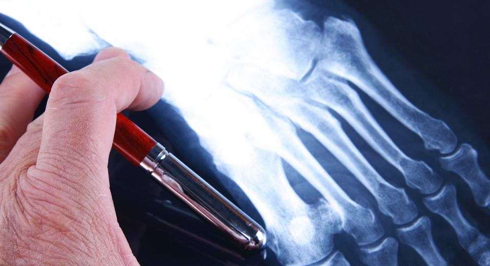 Câncer ósseo: quais os sinais para procurar um médico?