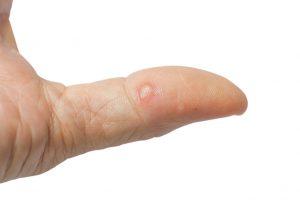 Disidrose: pequenas bolhas causadas por grande estresse